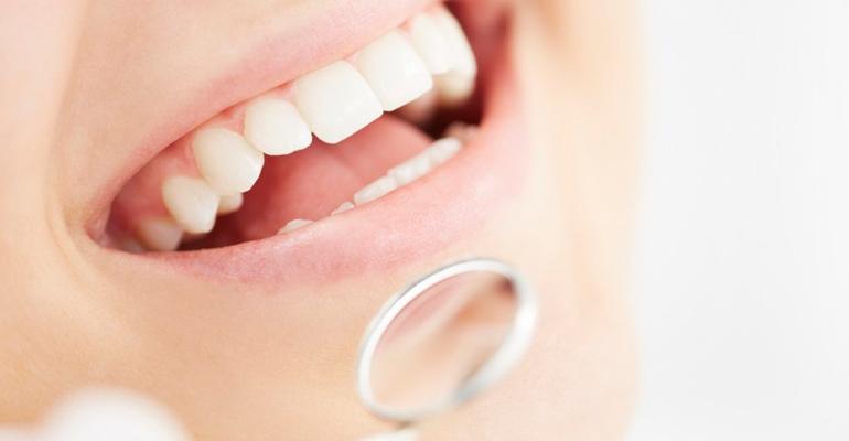 viva seguro sempre | Plano Dental: 5 razões Para ter um Seguro Odontológico