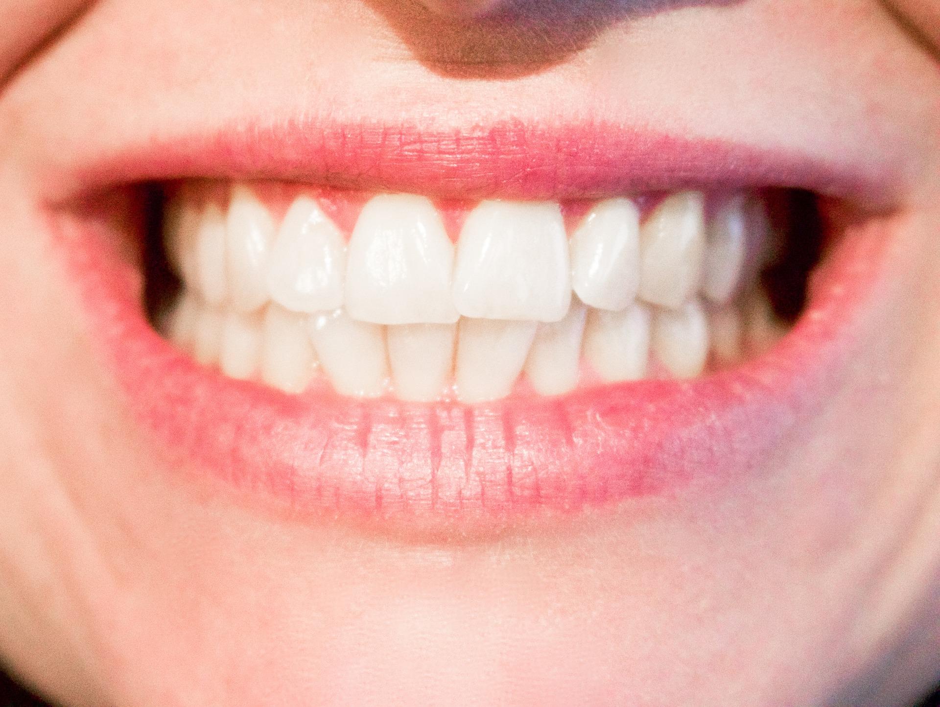 viva seguro sempre | Seguro Dentário: Problemas Ocasionados pelo Bruxismo