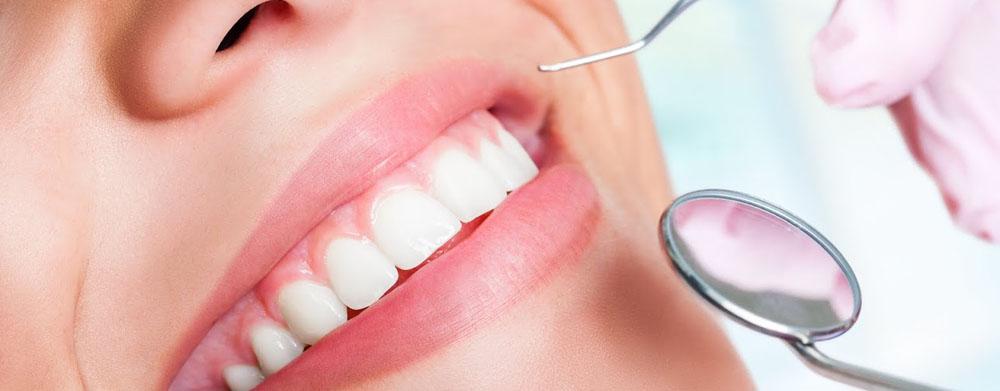 viva seguro sempre | Saúde Bucal: A Importância da Limpeza Dentária